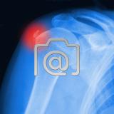 7.05_schulter.tendinitis.calcarea-0001.ap-s